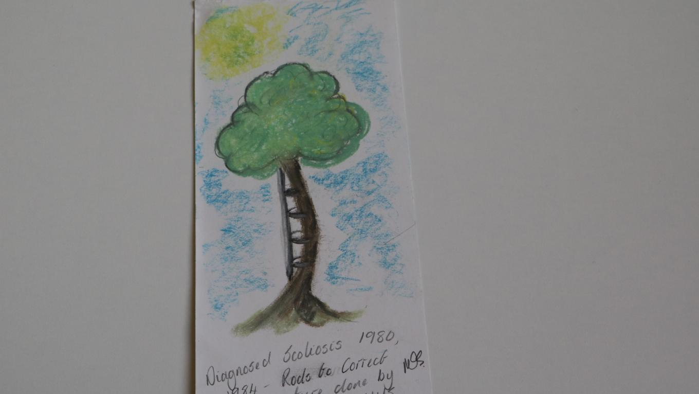 A drawing of a tree, representing spine curvature after diagnosis of Scoliosis